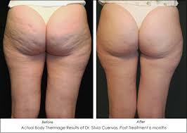 body cellulite